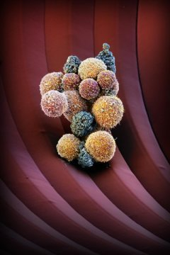Cancer: Drug fights formation of metastasis