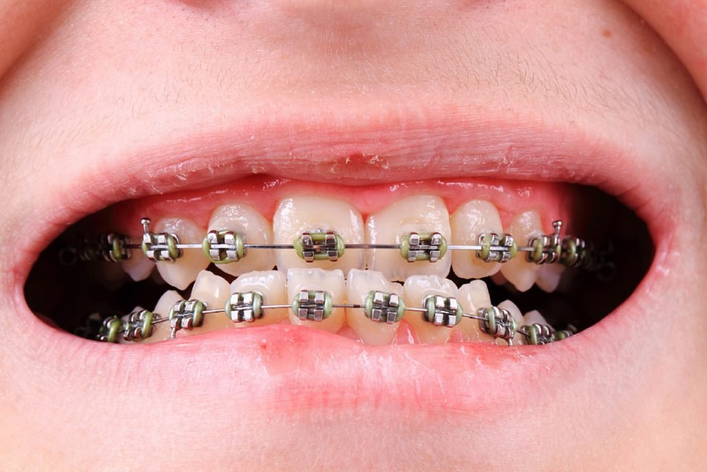 Braces are really effective?