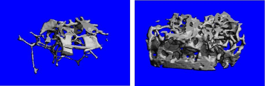 Ultra-sturdy bones, with a surprising origin, suggest new osteoporosis approach