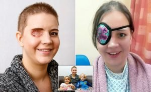 Mother was forced to have her EYE removed due to a rare cancer