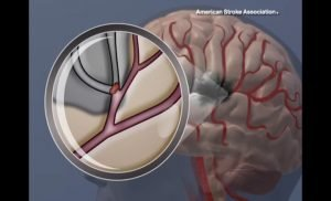 Target: Stroke program demonstrates substantially improved outcomes in adherence to guidelines