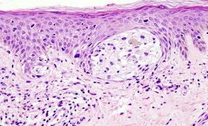 Artificial intelligence could predict spread of melanoma