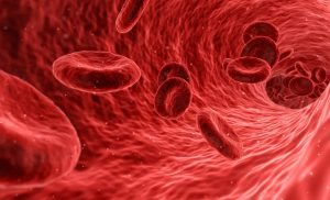 Varicose veins unlikely to develop into blood clots