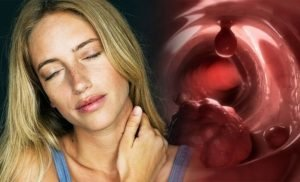 Cancer symptoms: Six less known signs of the deadly disease you should definitely know