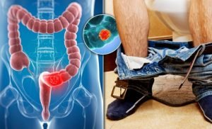 Bowel cancer warning: The colour poo you shouldn't ignore – what's a normal stool colour?