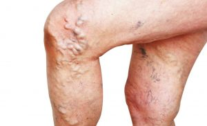 To varicose veins study: Laser treatment led to alarmingly frequent relapses!