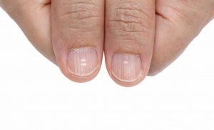 These spots on the finger signs for the diseases of nails are often