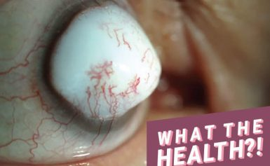 74-Year-Old Man Develops Huge White Bump on His Eyeball Following Surgery