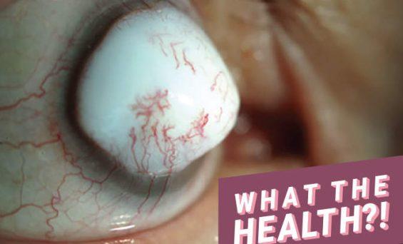 74-Year-Old Man Develops Huge White Bump on His Eyeball Following Surgery