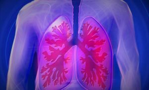 Lung cancer under-recognized in people who have never smoked