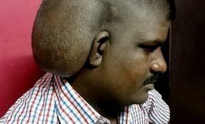 Surgeons remove the 'world's largest brain tumour'