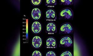 Brain Scans Reveal Potential Biomarker of Suicidal Thoughts in People with PTSD