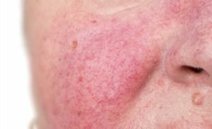 Rosacea: What Causes It & How To Treat It
