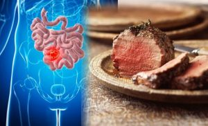 Bowel cancer: Eating even moderate amounts of this food may increase your risk