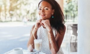 Skin care tips for people with Vitiligo