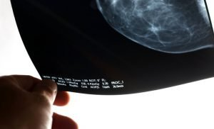 Health insurance companies should pay for the Biomarker Test for breast cancer