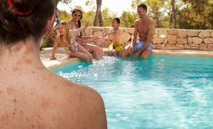 Eczema: Five tips you should know before going swimming – are you aware of these?