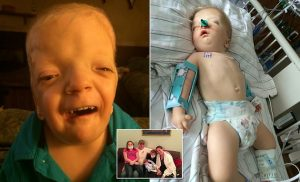 Disabled boy's condition is so rare doctors named it after him