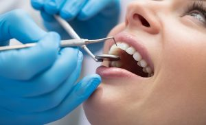 Scientists create material that could help you regrow enamel naturally