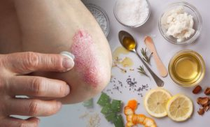 Eczema treatment: This kitchen cupboard staple could help get rid of the rash