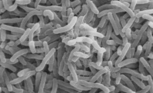 Sudan reports cholera in war-torn Blue Nile state