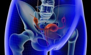 Intrauterine device use may reduce incidence of ovarian cancer