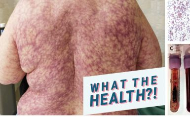 """This Woman's Back is Covered in a Purple, """"Netlike"""" Rash—and Doctors Say ItCould Be From Cold Weather"""
