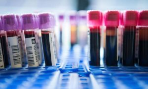 Controversial trisomy Test is Fund performance: The you need to know about the investigation