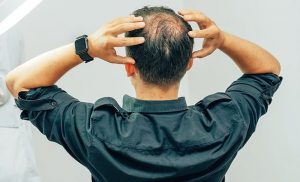 Spending more than 52 hours at work a week 'DOUBLES chance of balding'