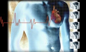 Smartphone-operated one-lead ECG detects A-fib, flutter