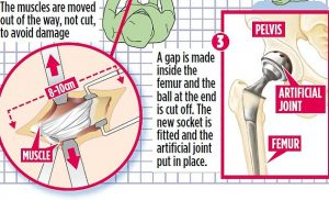 Look, no scars! 'Beach body' operation spares patients unsightly marks