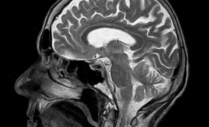 An MRI developed by a Yale professor could make healthcare more affordable
