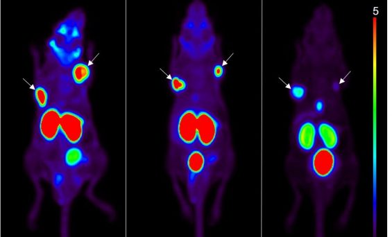 New technique could optimize PSMA-targeted prostate cancer therapy