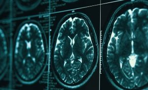Neuroscientists have gained new insight into how the brain predicts missing visual information