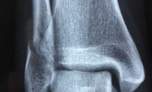 Study assesses fracture risk for patients taking multiple medications