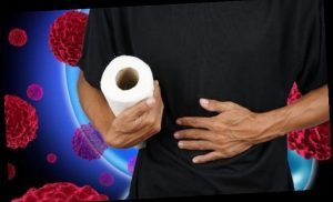 Stomach cancer symptoms: What colour are your stools? Warning sign of the deadly disease