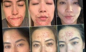 CBS Miami's Frances Wang Is 'Giddy' After Seeing Improvements in Her Perioral Dermatitis