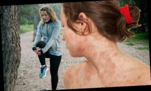 Eczema treatment: How to exercise without causing a flare-up – four key tips