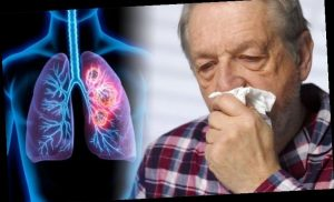 Lung cancer symptoms: Look out for this sign when you cough in a tissue