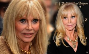 Britt Ekland health: The condition which made the Bond girl feel very insecure
