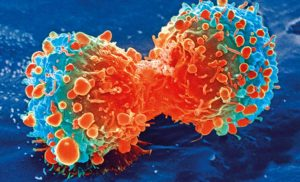 Cancer cells alter protein production machinery to hasten metastasis
