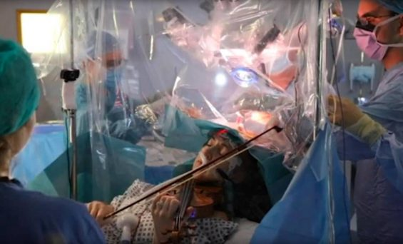 A woman plays during her own brain SURGERY, violin