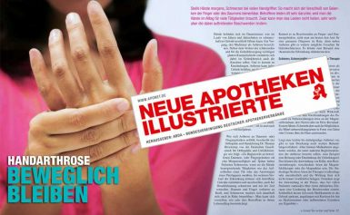 Hand osteoarthritis: keep moving