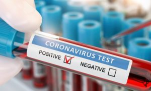Corona virus with a new sensor-based Test to identify quickly and reliably – Naturopathy naturopathy specialist portal