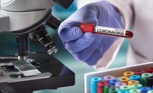 Coronavirus: masses-blood-test starts – Naturopathy naturopathy specialist portal