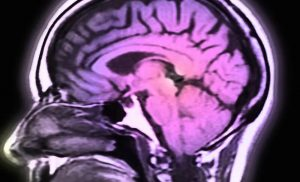 In some cases, COVID-19 may harm the brain: study