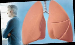 Lung cancer: Each step of the deadly disease from stage 1 to stage 4