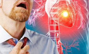 Heart attack symptoms: The signs that may appear months before the deadly episode