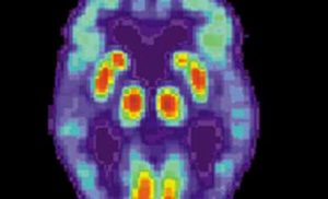 New imaging tool helps researchers see extent of Alzheimer's early damage