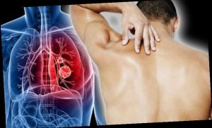 Lung cancer symptoms – does your back feel like this? The hidden sign you may be ignoring